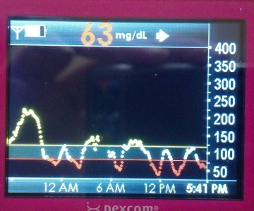 If my pancreas worked properly, I wouldn't need help to know when my blood sugar is low.